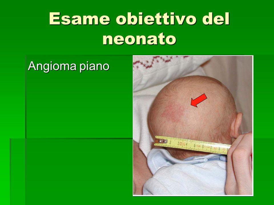 Esame obiettivo del neonato Angioma piano