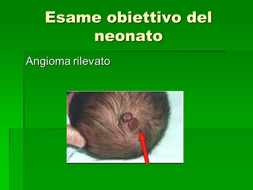 Esame obiettivo del neonato Angioma rilevato