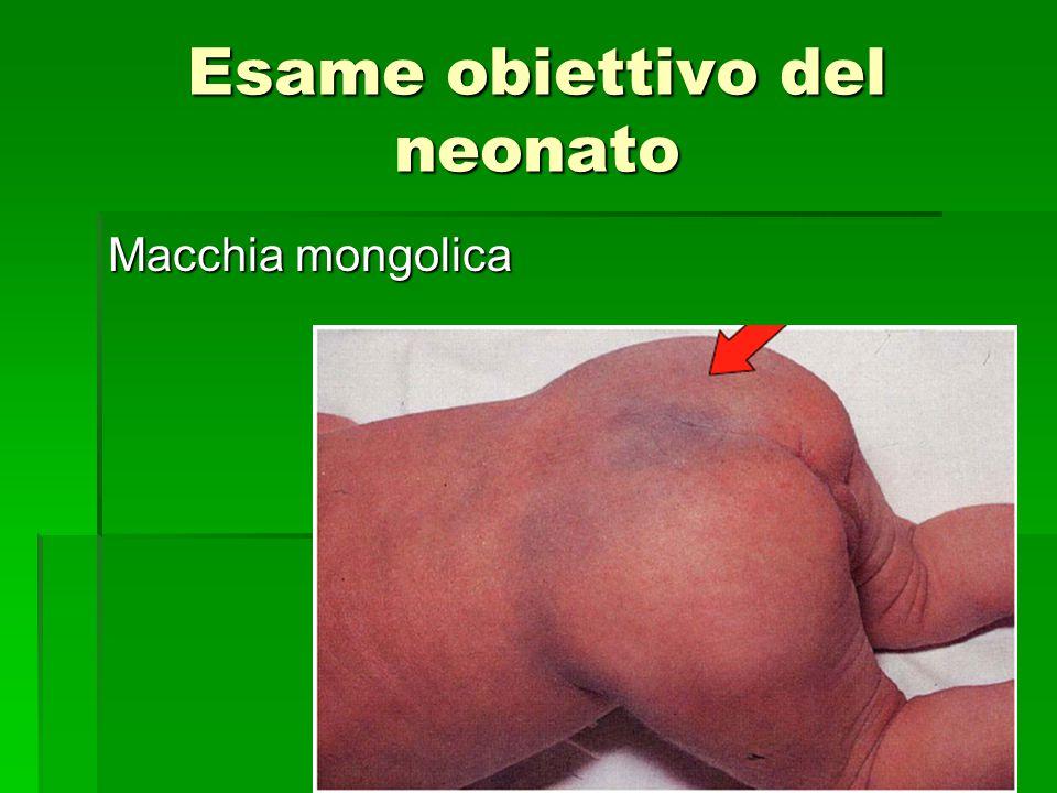 Esame obiettivo del neonato Macchia mongolica