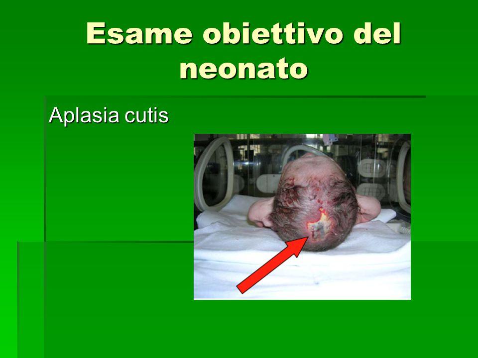 Esame obiettivo del neonato Aplasia cutis
