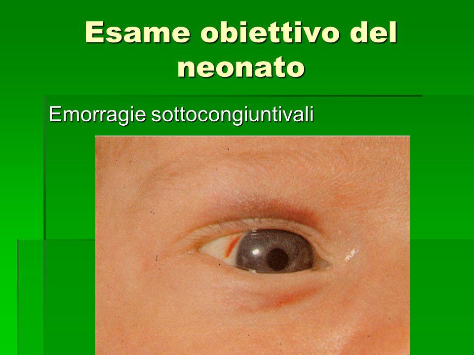 Esame obiettivo del neonato Emorragie sottocongiuntivali