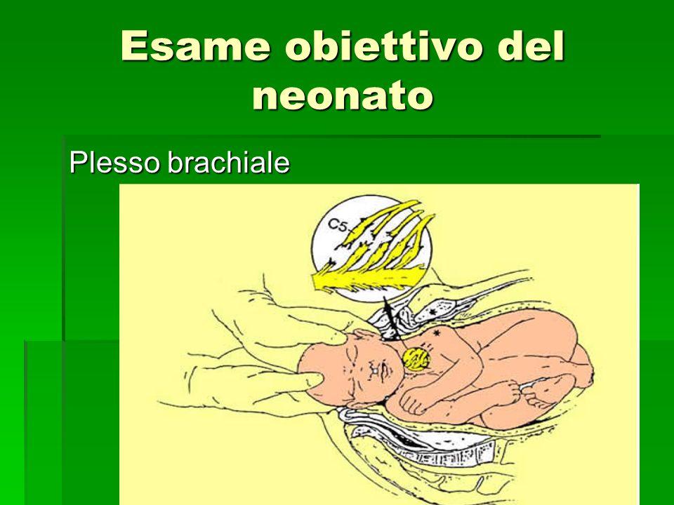Plesso brachiale