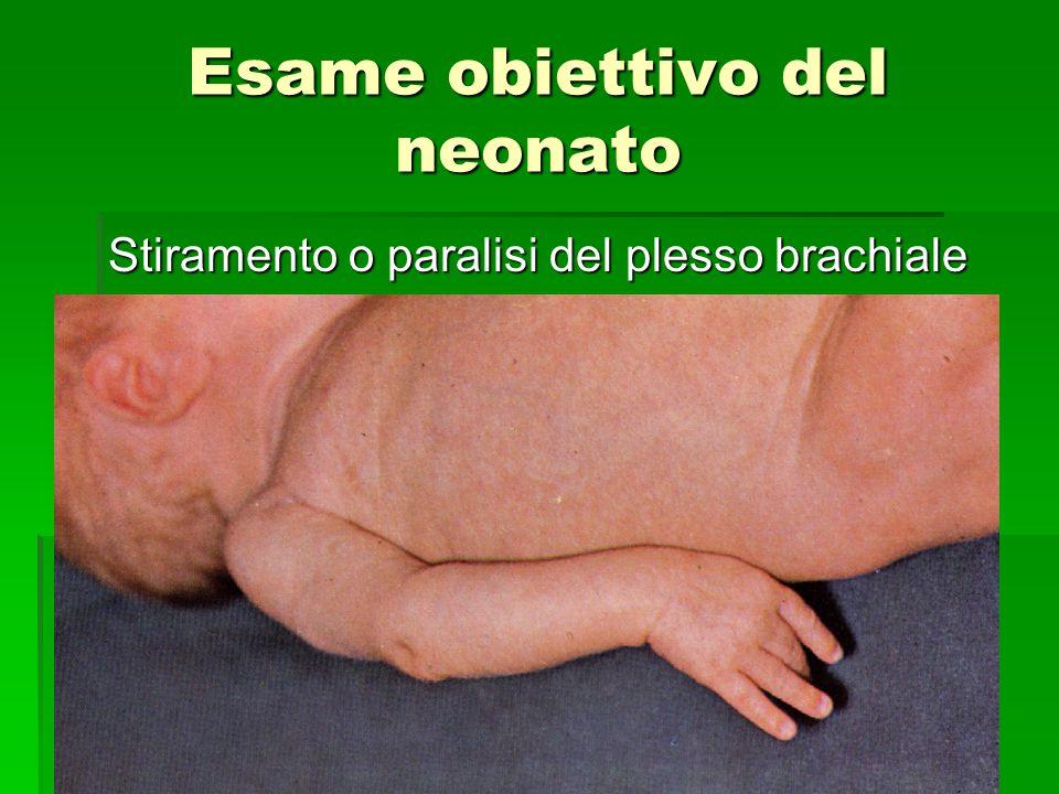 Esame obiettivo del neonato Stiramento o paralisi del plesso brachiale