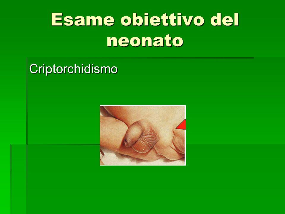 Esame obiettivo del neonato Criptorchidismo