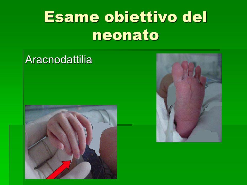 Esame obiettivo del neonato Aracnodattilia