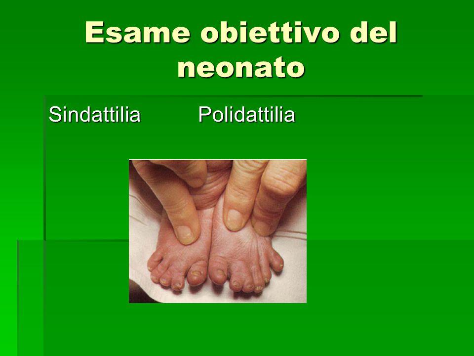 Esame obiettivo del neonato Sindattilia Polidattilia