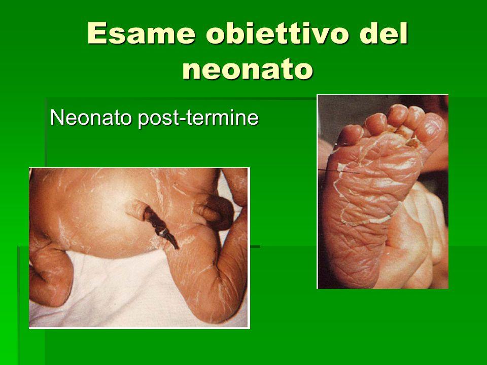 Neonato post-termine