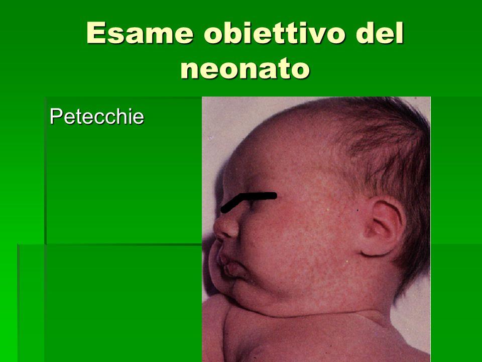 Esame obiettivo del neonato Petecchie