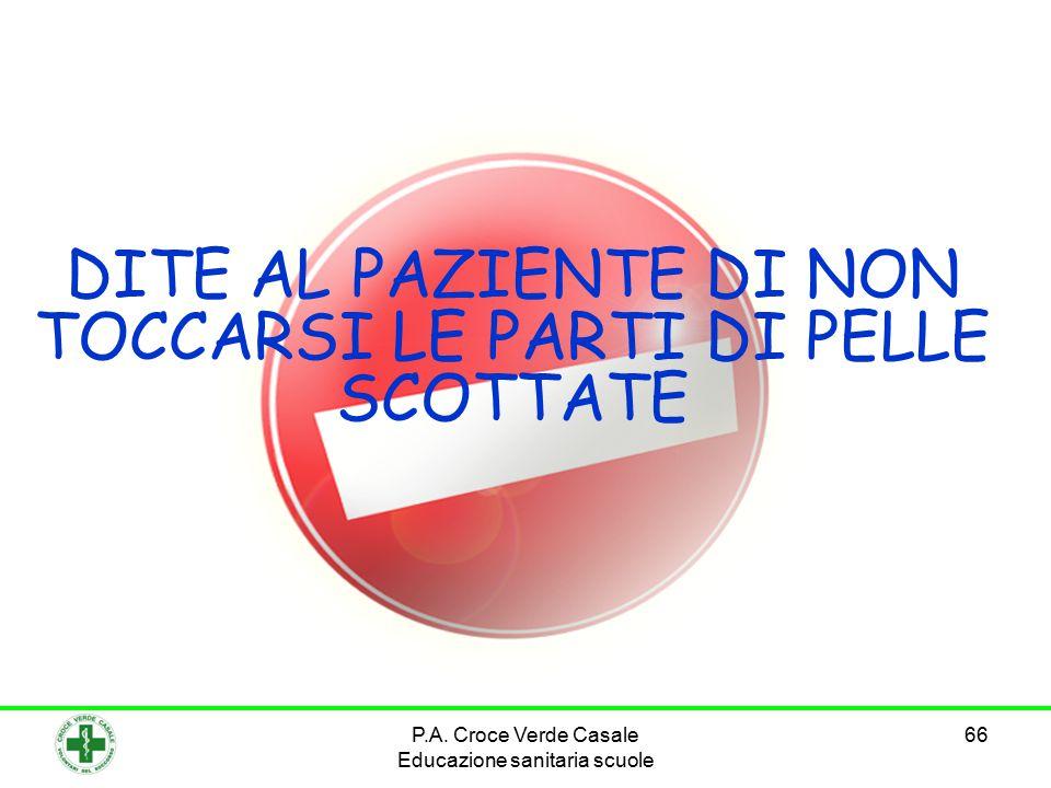 66 DITE AL PAZIENTE DI NON TOCCARSI LE PARTI DI PELLE SCOTTATE P.A.