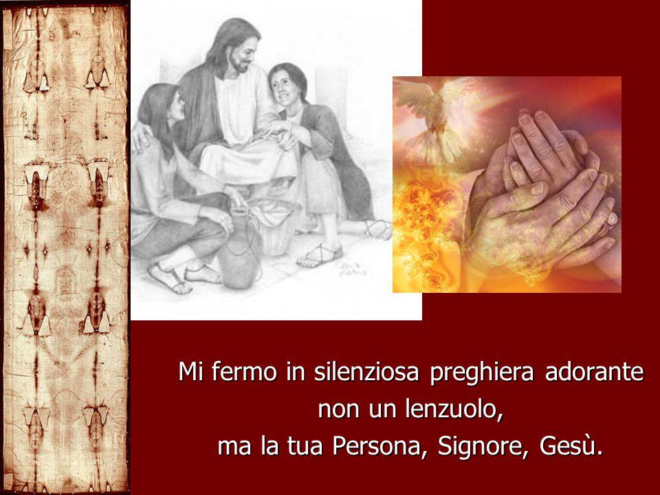 Mi fermo in silenziosa preghiera adorante non un lenzuolo, ma la tua Persona, Signore, Gesù.