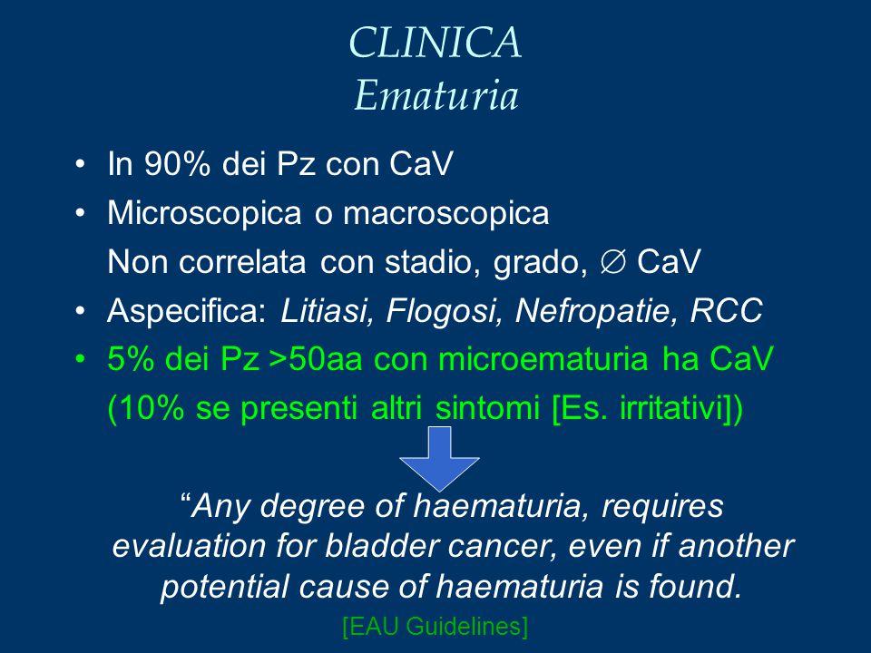 CLINICA Ematuria In 90% dei Pz con CaV Microscopica o macroscopica Non correlata con stadio, grado,  CaV Aspecifica: Litiasi, Flogosi, Nefropatie, RC
