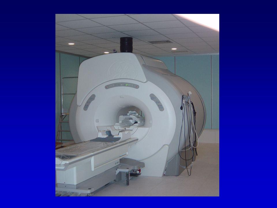 Tomografia a risonanza magnetica nucleare Si tratta di una tecnica non invasiva in grado di produrre immagini dei tessuti molli con contrasto sette o anche otto volte migliore di quanto si possa ottenere con una TC ed in più senza l uso di radiazioni ionizzanti.