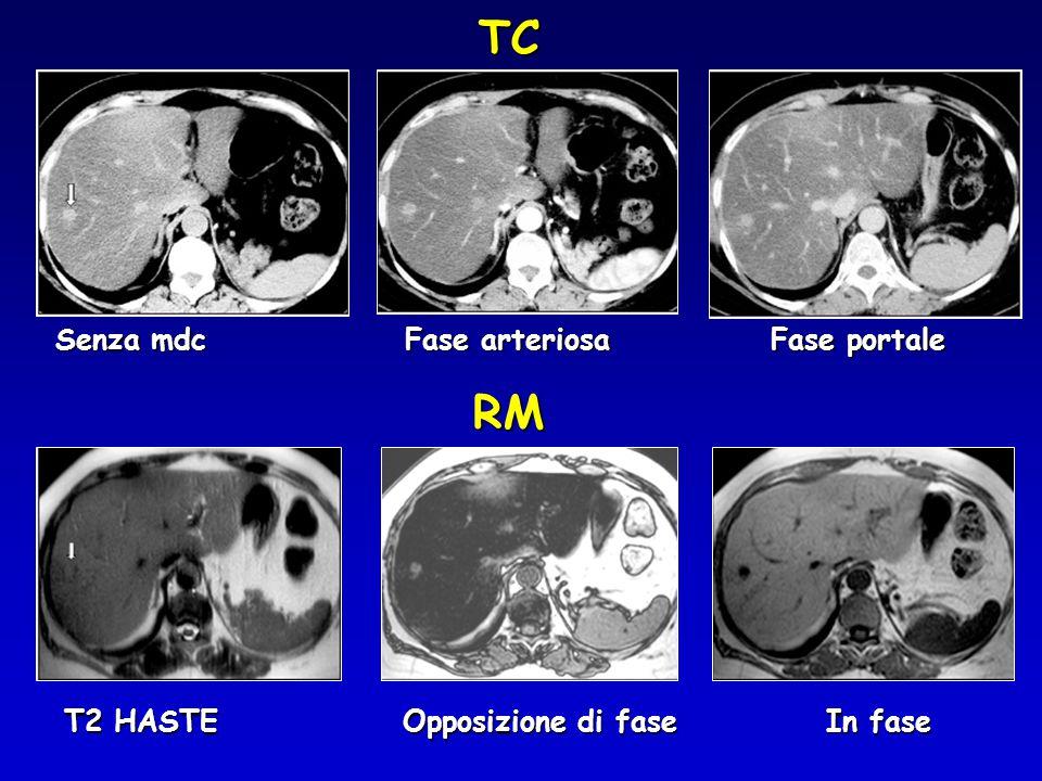 Senza mdc Fase arteriosa Fase portale TC T2 HASTE Opposizione di fase In fase RM