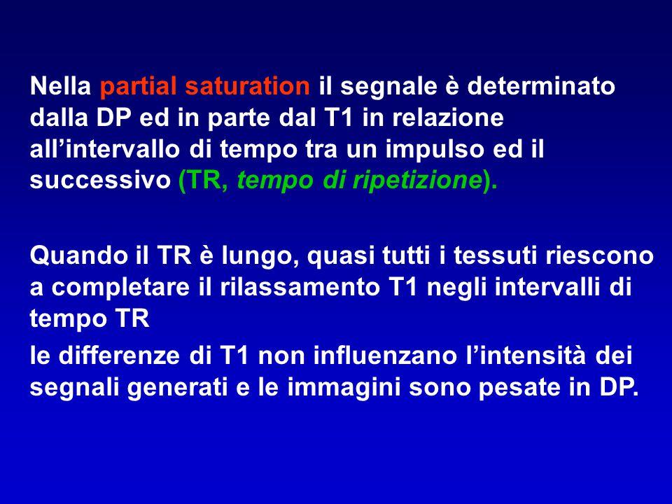 Nella partial saturation il segnale è determinato dalla DP ed in parte dal T1 in relazione all'intervallo di tempo tra un impulso ed il successivo (TR