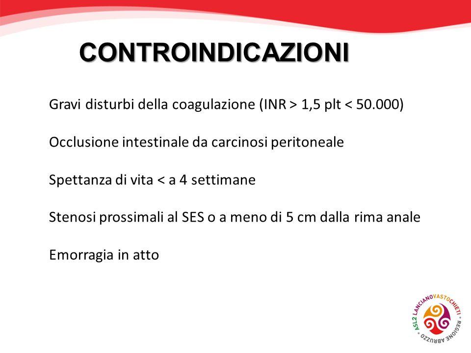 CONTROINDICAZIONI Gravi disturbi della coagulazione (INR > 1,5 plt < 50.000) Occlusione intestinale da carcinosi peritoneale Spettanza di vita < a 4 s