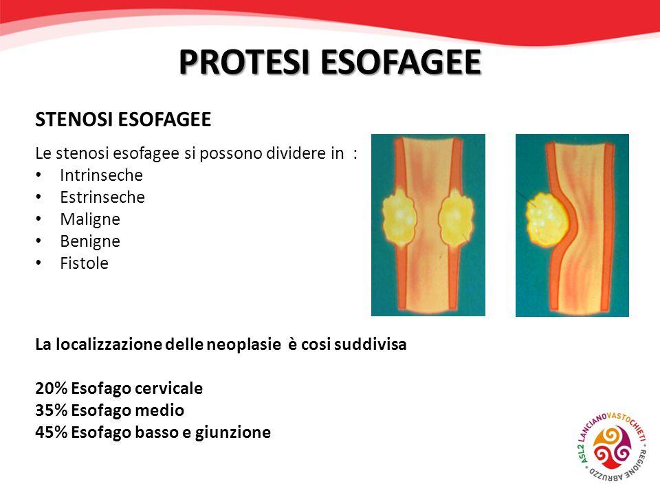 Le stenosi esofagee si possono dividere in : Intrinseche Estrinseche Maligne Benigne Fistole La localizzazione delle neoplasie è cosi suddivisa 20% Es