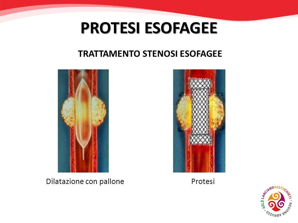 TRATTAMENTO STENOSI ESOFAGEE Dilatazione con pallone Protesi