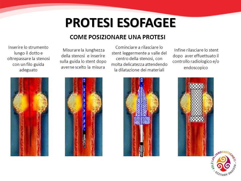PROTESI ESOFAGEE COME POSIZIONARE UNA PROTESI Inserire lo strumento lungo il dotto e oltrepassare la stenosi con un filo guida adeguato Misurare la lu