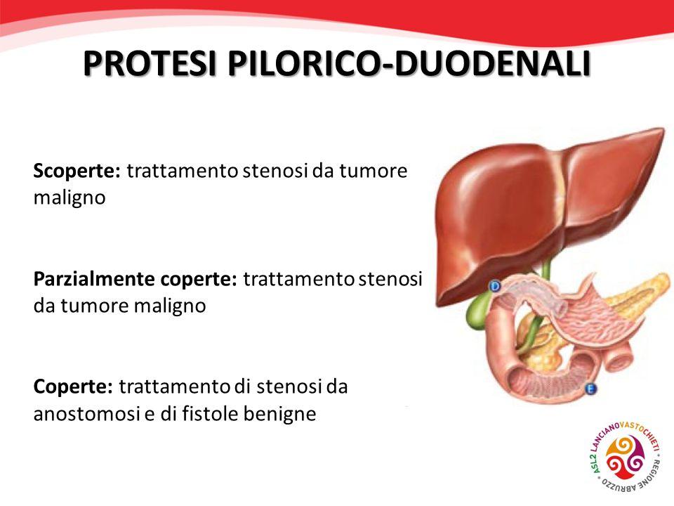 Scoperte: trattamento stenosi da tumore maligno Parzialmente coperte: trattamento stenosi da tumore maligno Coperte: trattamento di stenosi da anostom