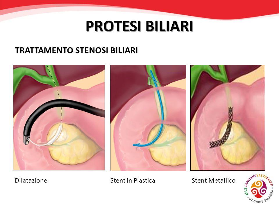 PROTESI BILIARI Dilatazione Stent in Plastica Stent Metallico TRATTAMENTO STENOSI BILIARI