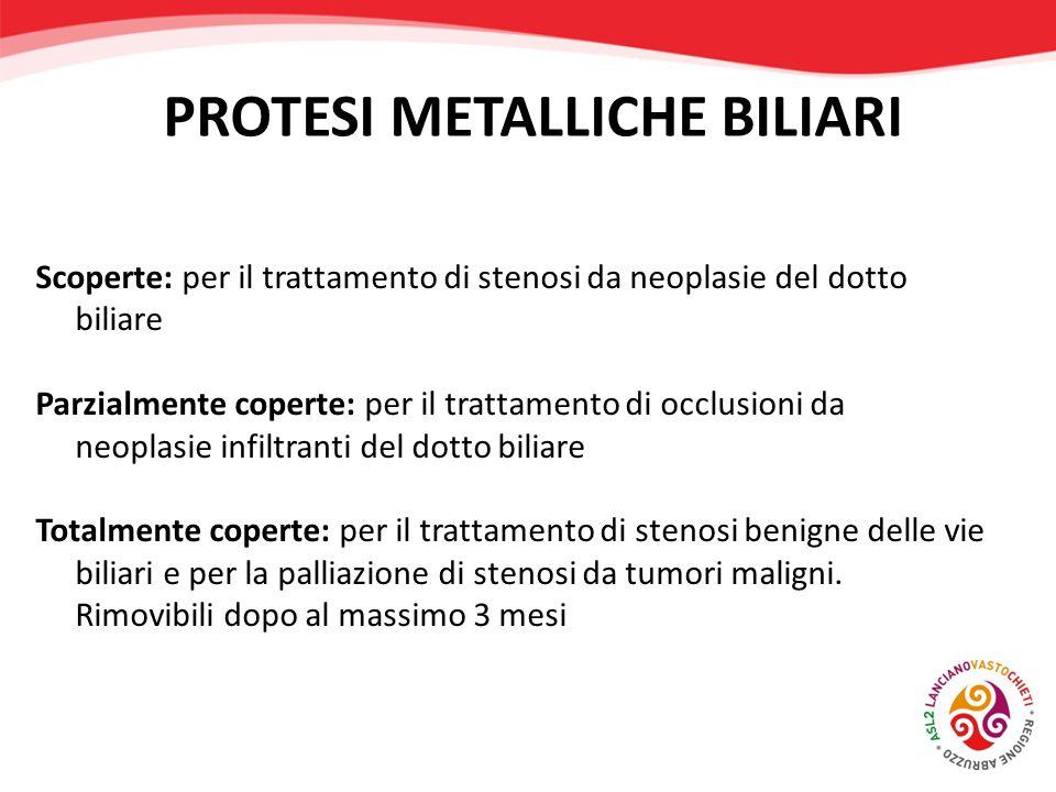 PROTESI METALLICHE BILIARI Scoperte: per il trattamento di stenosi da neoplasie del dotto biliare Parzialmente coperte: per il trattamento di occlusio