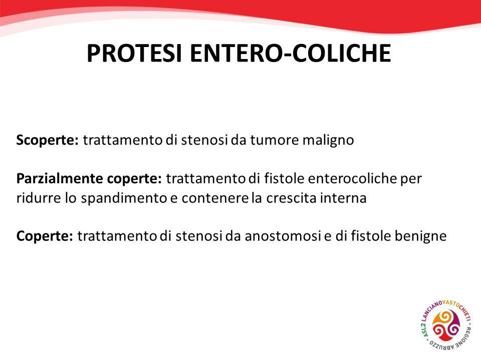 Scoperte: trattamento di stenosi da tumore maligno Parzialmente coperte: trattamento di fistole enterocoliche per ridurre lo spandimento e contenere l