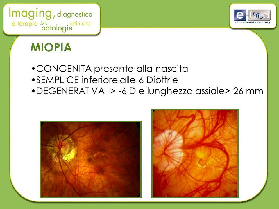 MIOPIA CONGENITA presente alla nascita SEMPLICE inferiore alle 6 Diottrie DEGENERATIVA > -6 D e lunghezza assiale> 26 mm