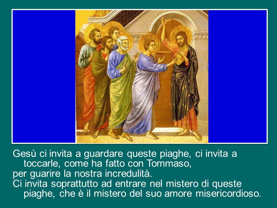Anche a noi, oggi, in questa Domenica che san Giovanni Paolo II ha voluto intitolare alla Divina Misericordia, il Signore mostra, mediante il Vangelo, le sue piaghe.
