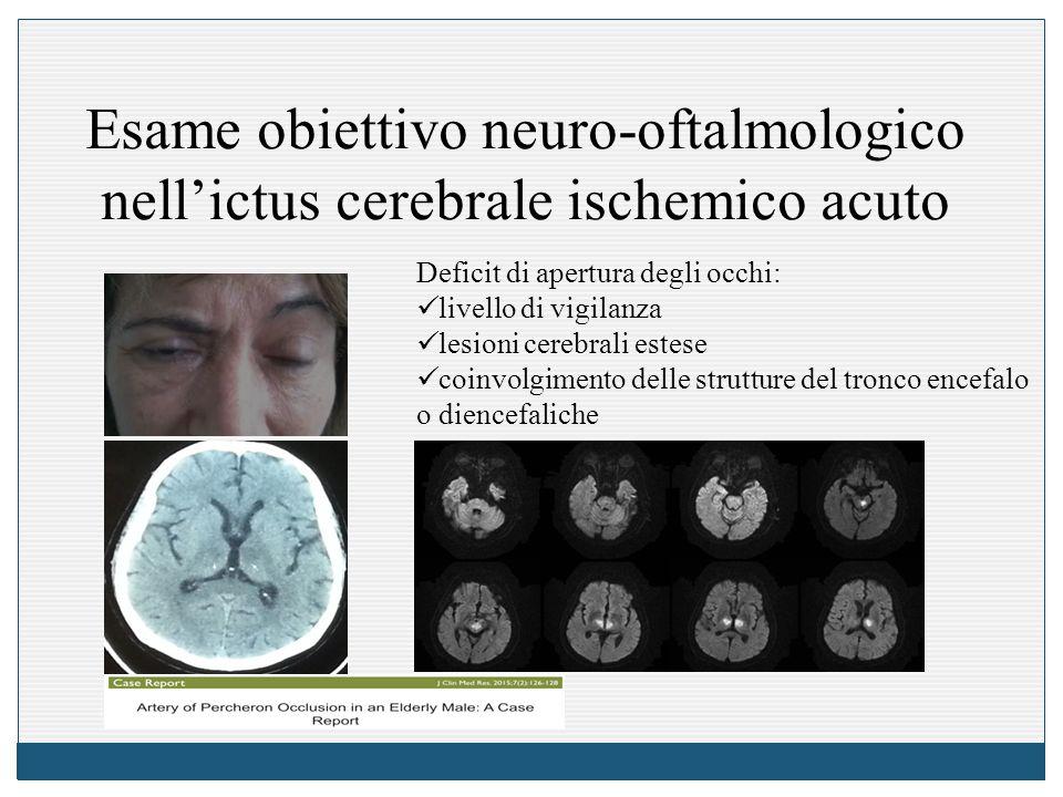 Esame obiettivo neuro-oftalmologico nell'ictus cerebrale ischemico acuto Deficit di apertura degli occhi: livello di vigilanza lesioni cerebrali estese coinvolgimento delle strutture del tronco encefalo o diencefaliche