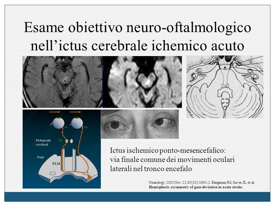 Esame obiettivo neuro-oftalmologico nell'ictus cerebrale ichemico acuto Ictus ischemico ponto-mesencefalico: via finale comune dei movimenti oculari l