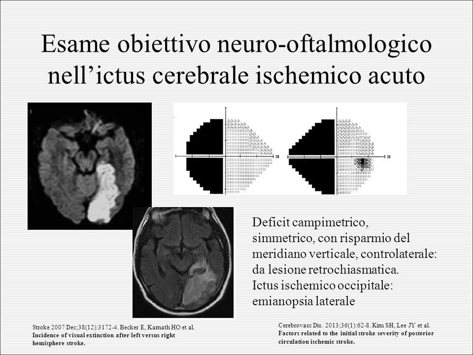 Esame obiettivo neuro-oftalmologico nell'ictus cerebrale ischemico acuto Deficit campimetrico, simmetrico, con risparmio del meridiano verticale, controlaterale: da lesione retrochiasmatica.