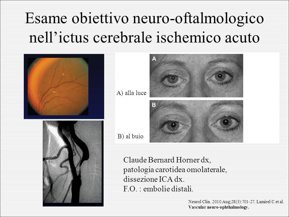 Esame obiettivo neuro-oftalmologico nell'ictus cerebrale ischemico acuto Claude Bernard Horner dx, patologia carotidea omolaterale, dissezione ICA dx.