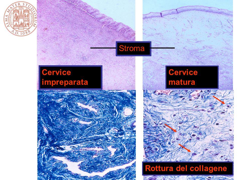 Cervice impreparata Cervice matura Stroma Rottura del collagene