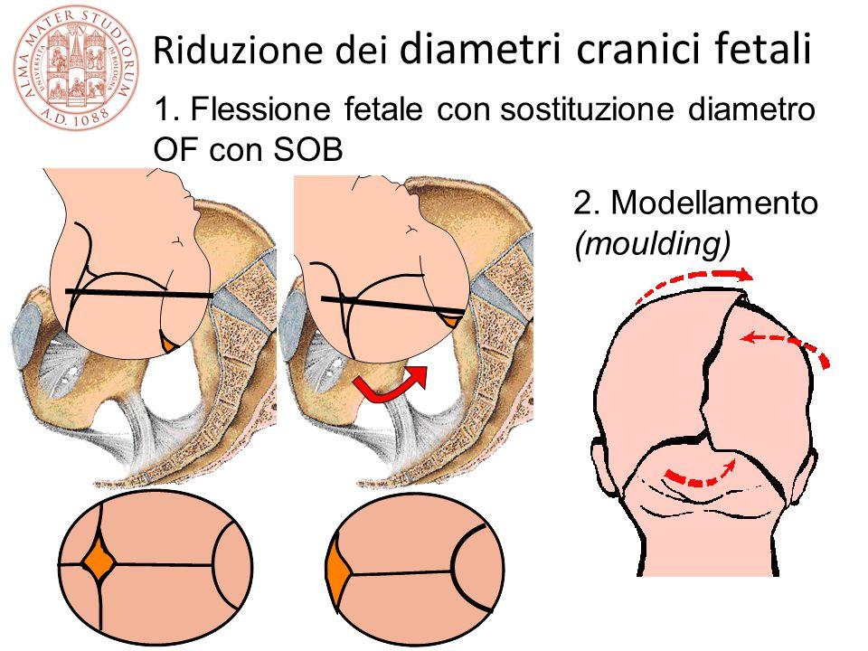 Riduzione dei diametri cranici fetali 2. Modellamento (moulding) 1. Flessione fetale con sostituzione diametro OF con SOB