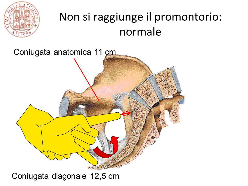 Non si raggiunge il promontorio: normale Coniugata anatomica 11 cm Coniugata diagonale 12,5 cm