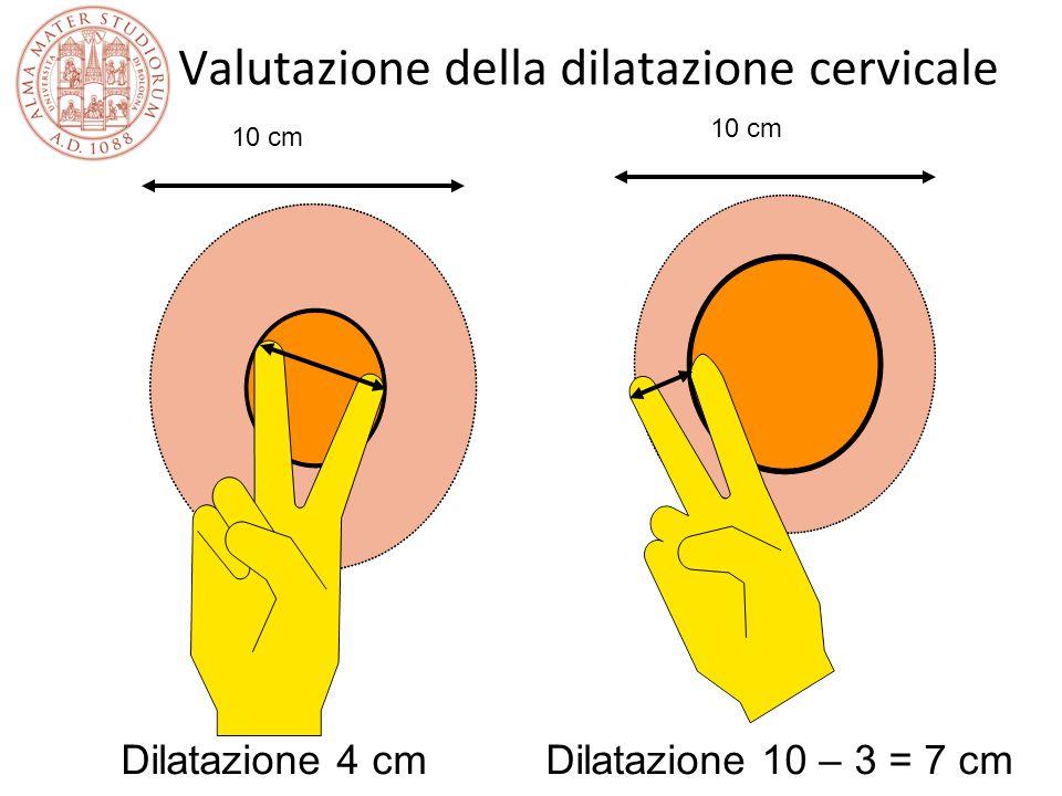 Valutazione della dilatazione cervicale 10 cm Dilatazione 4 cmDilatazione 10 – 3 = 7 cm