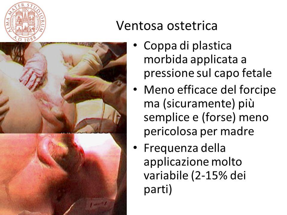 Ventosa ostetrica Coppa di plastica morbida applicata a pressione sul capo fetale Meno efficace del forcipe ma (sicuramente) più semplice e (forse) me