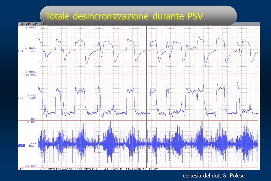 Totale desincronizzazione durante PSV cortesia del dott.G. Polese