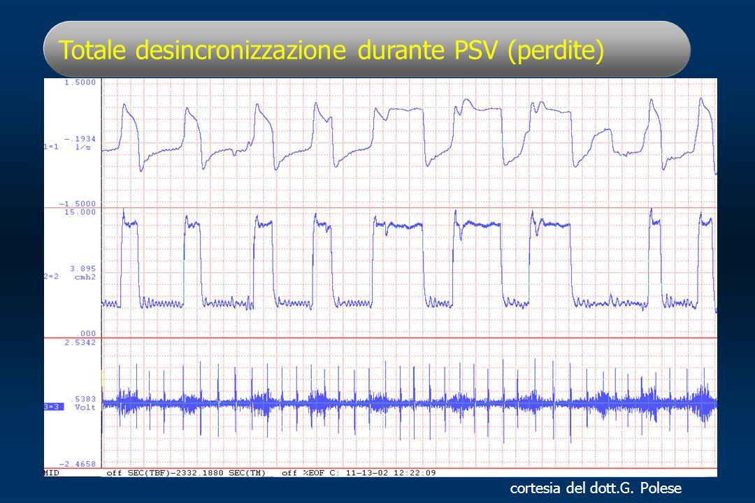 Totale desincronizzazione durante PSV (perdite) cortesia del dott.G. Polese