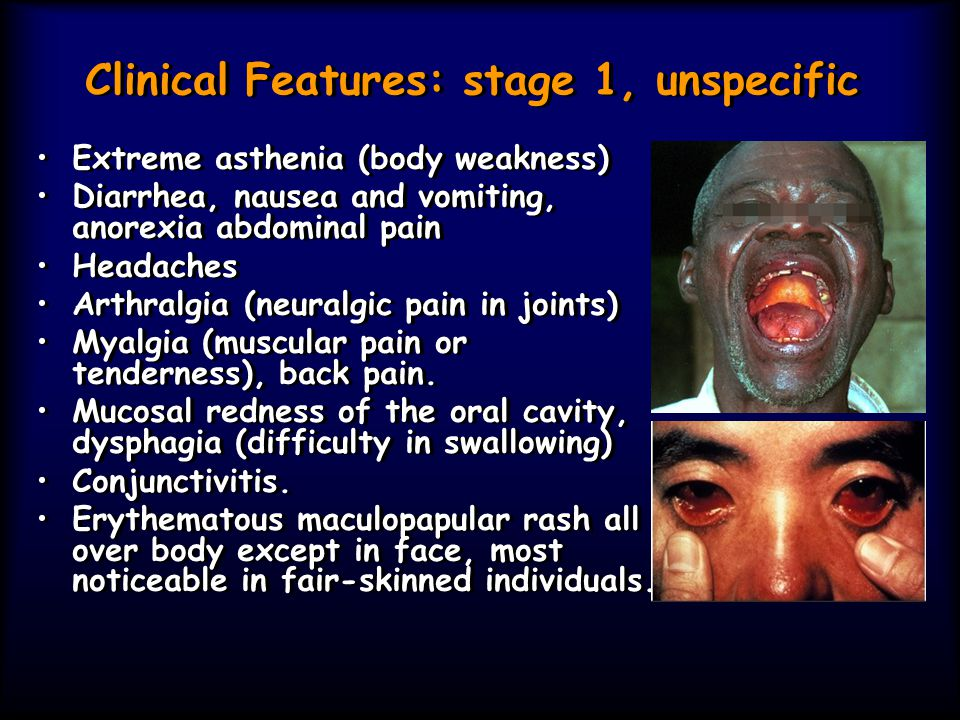 Clinical Features: stage 1, unspecific Extreme asthenia (body weakness) Diarrhea, nausea and vomiting, anorexia abdominal pain Headaches Arthralgia (n
