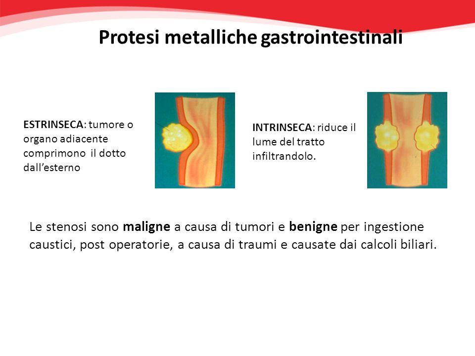 Gamma completa di protesi per il trattamento di patologie benigne e maligne nel tratto: Esofageo Biliare Pilorico-duodenale Entero-colico Protesi metalliche gastrointestinali