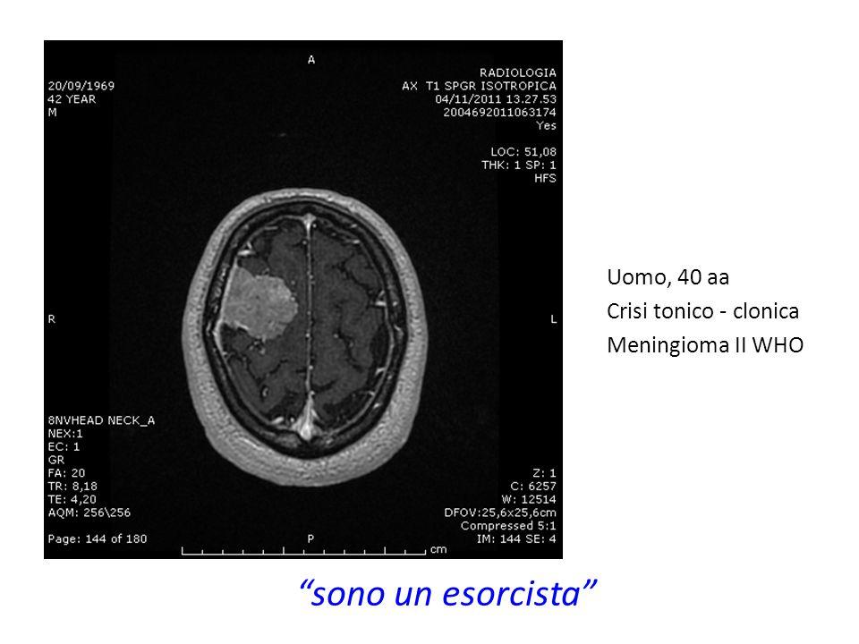 Uomo, 40 aa Crisi tonico - clonica Meningioma II WHO sono un esorcista