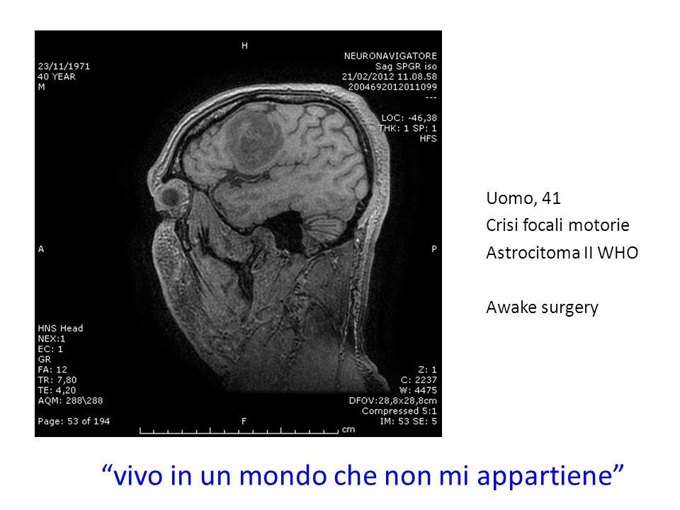 Uomo, 41 Crisi focali motorie Astrocitoma II WHO Awake surgery vivo in un mondo che non mi appartiene