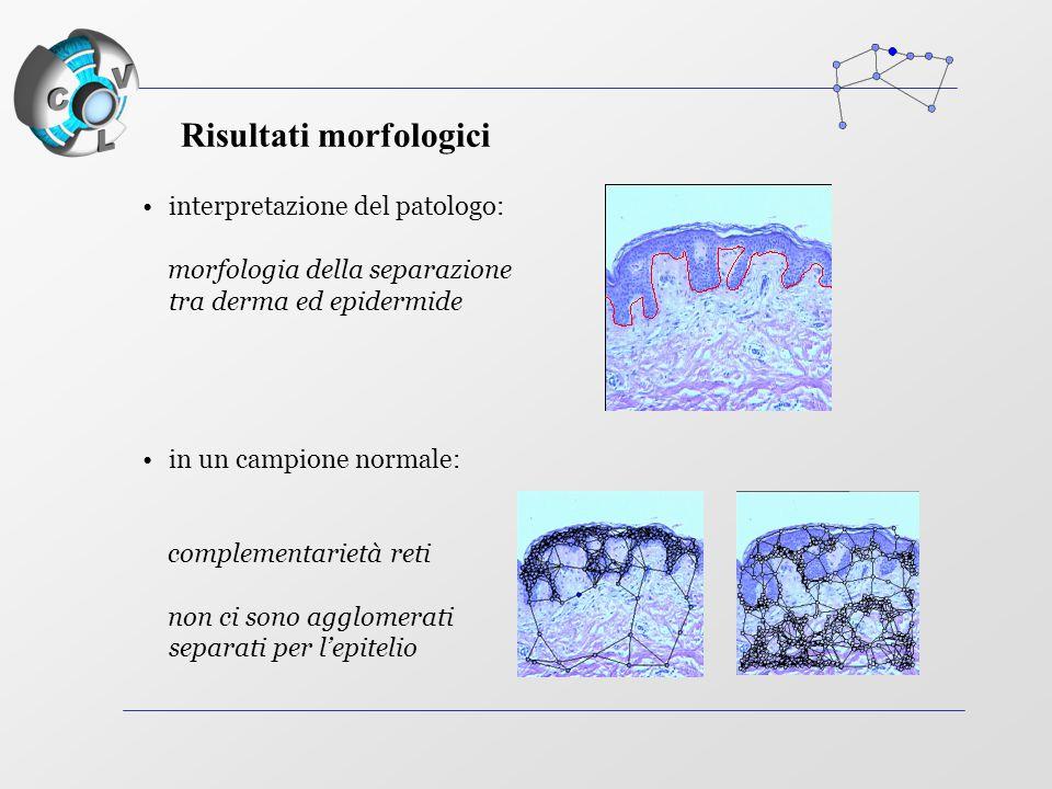 interpretazione del patologo: morfologia della separazione tra derma ed epidermide in un campione normale: complementarietà reti non ci sono agglomerati separati per l'epitelio Risultati morfologici