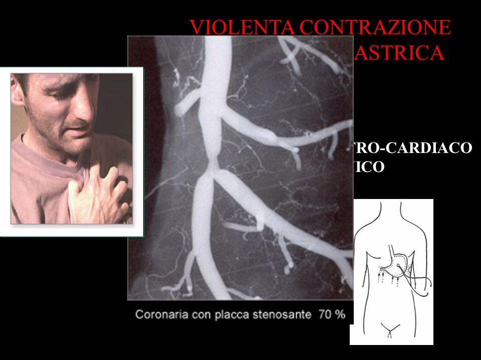 VIOLENTA CONTRAZIONE DELLA CURVA GASTRICA RIFLESSO GASTRO-CARDIACO TONICO