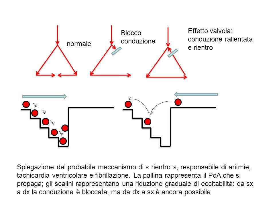 normale Blocco conduzione Effetto valvola: conduzione rallentata e rientro Spiegazione del probabile meccanismo di « rientro », responsabile di aritmi