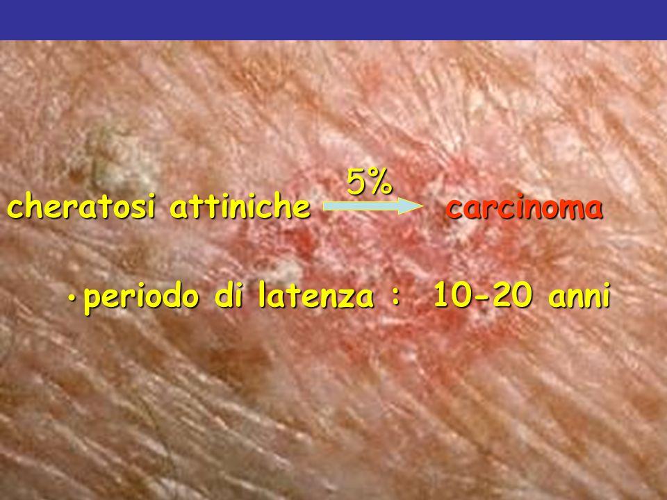 periodo di latenza : 10-20 anni periodo di latenza : 10-20 anni Parisi AV et al. Photoderm Photoimmunol Photomed 2001 cheratosi attiniche carcinoma 5%