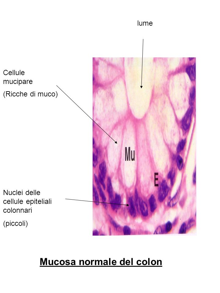 Mucosa normale del colon Cellule mucipare Nuclei delle cellule epiteliali colonnari lume (piccoli) (Ricche di muco)