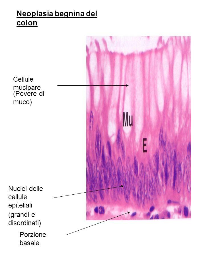 Neoplasia begnina del colon Cellule mucipare Nuclei delle cellule epiteliali Porzione basale (Povere di muco) (grandi e disordinati)