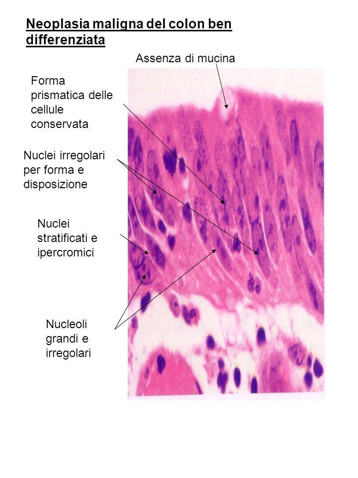 Neoplasia maligna del colon ben differenziata Forma prismatica delle cellule conservata Nuclei irregolari per forma e disposizione Assenza di mucina N